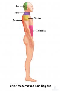 Chiari Malformation Pain Regions-1 (1)-1